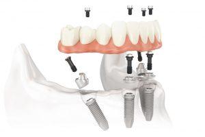 dantų netekusiam pacientui – inovatyvūs dantų atkūrimo būdai