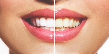 Dantų balinimas klaipėdos odontologijos klinikoje
