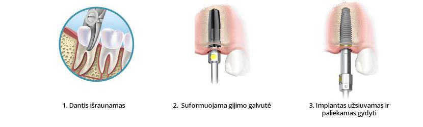 Implantacijos procedūra
