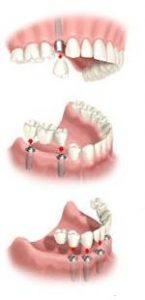 Kam skirti dantų implantai