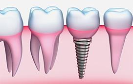 Dantų implantacija Klaipėdos Odontologijos klinikoje
