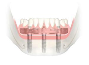 "Odontologijos stebuklas – ""Trefoil"" sistema"